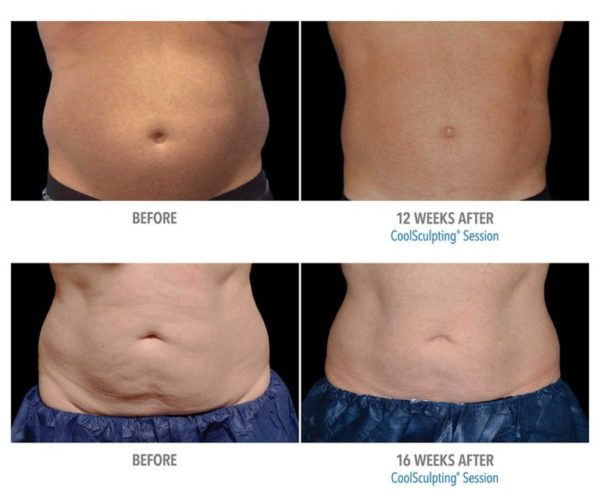 Melinda Silva MD CoolSculpting Before and After Results